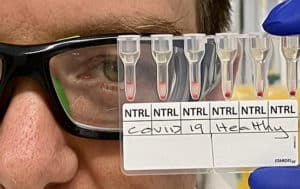 Blood test detects positive COVID-19 result in 20 minutes