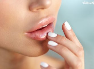 Natural Remedies for Cold Sores